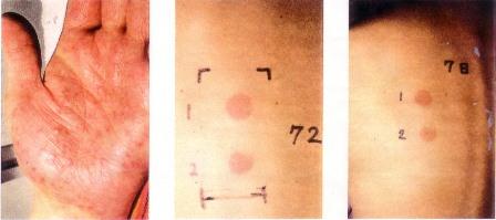 クロム(Cr)による掌蹠膿疱症