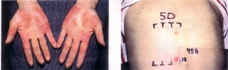 亜鉛(Zn)による掌蹠膿疱症